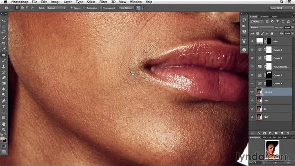 Blemish reduction: Photoshop Retouching Techniques: Skin