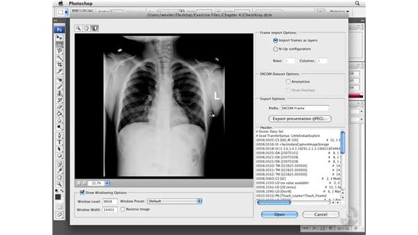 Using the DICOM Importation interface: Photoshop CS3 Extended for BioMedical Research