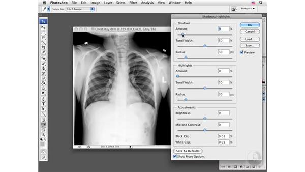 Optimizing a DICOM image: Photoshop CS3 Extended for BioMedical Research